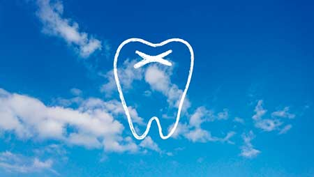 小坂菜緒の白い前歯が不自然?矯正ではなくセラミック?